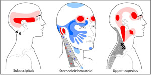 Trigger Points in neck